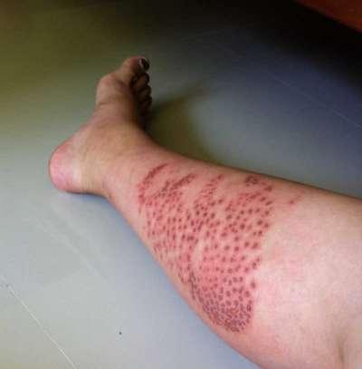Box jellyfish scars