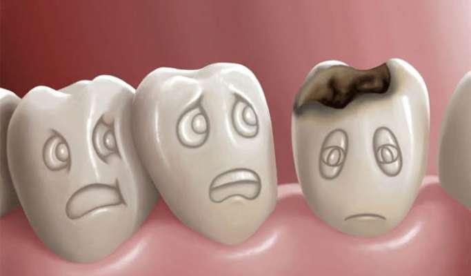 Image result for दांतों में कीड़े लगना