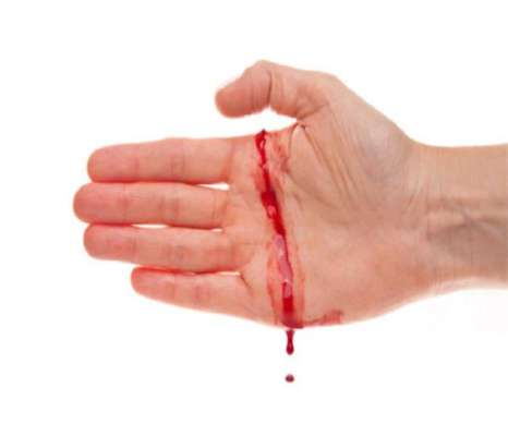 Image result for खून के बहने पर